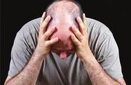 脱发有救了!美国科学家发现根治秃头的新方法