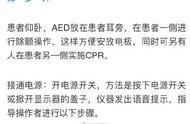 """长知识!四步教你""""救命神器""""AED正确使用方法,关键时刻能救命"""
