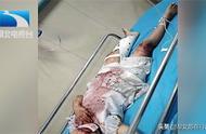 4岁女童被锁家中,高处坠落全身骨折,家长出门该不该反锁?