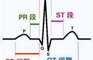 这么教你看心电图,还有什么理由看不懂?