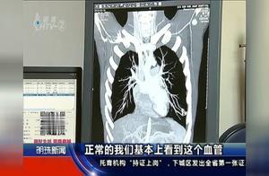 高考在即,男生却被查出肺血管畸形,随时都有生命危险!