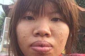 越南女子因为丑嫁不出去,花费10万元整容后,和富二代男子闪婚