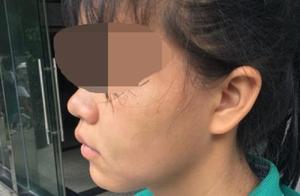 广州白云区初中女生在厕所遭同学殴打 被指说对方坏话