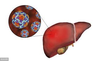 肝炎元凶找到了,基本就是这几样,要保肝护肝有些事要做好