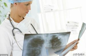 被胸片坑了那么多年,现在终于意识到,能筛查到早期肺癌的唯有它