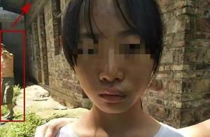 网传桂林全州14岁女孩遭父亲家暴,民警回应