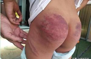 网传山东郯城县一小学生被老师打100多棍 教体局:已停职