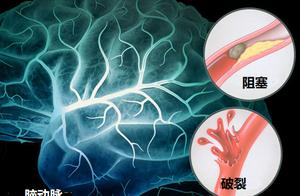 中风元凶有两个,脑血管被堵或破裂,血稠血压高的做到4点来避免