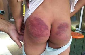 最新通报!郯城被打小学生构成轻微伤,涉事教师被拘留、开除