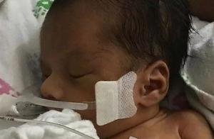 那个被强行从子宫取出的美国婴儿去世了!网友:严惩凶手