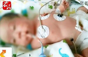 液化气罐泄漏爆炸,怀胎8月孕妇被严重烧伤,为保孩子舍命剖腹产