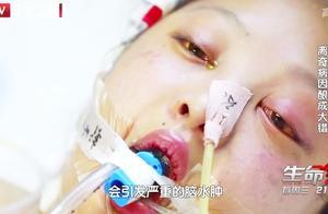 亲情1:花季少女突陷昏迷,毒素损伤神经系统,肝脏受到严重损伤
