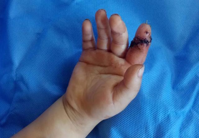 3 岁儿童食指离断,7 小时后遇到「对的人」