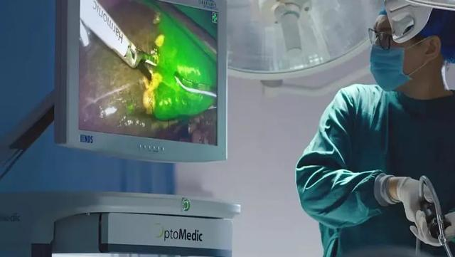 给肿瘤上色?常州二院开展高清荧光腹腔镜显像新技术