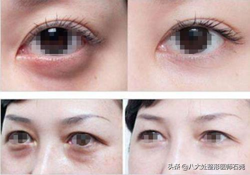 很多人眼部整形手术失败,这些误区你知道吗?