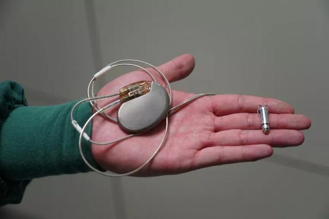 绵阳市中心医院专家完成世界最小无导线起搏器植入