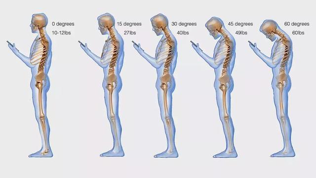 上班族颈椎病怎么改善?每天3分钟快速见效指南,快来一起学!