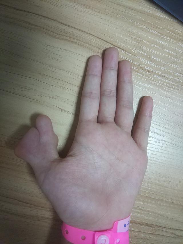 隐秘的角落:九岁患儿手上的秘密!先天性多指畸形,早治很关键