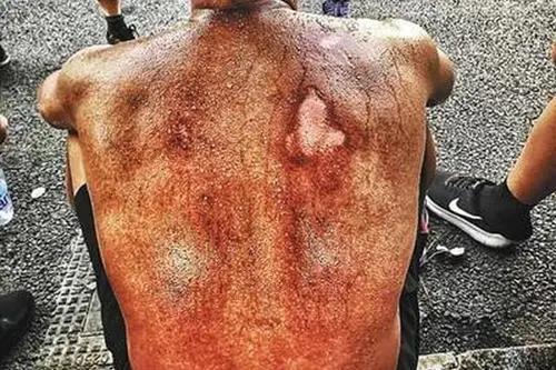 天津爆炸5周年:消防員幸存者被逼道歉,燒掉了千萬中國人的臉面