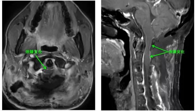 清除大脑神经总「电缆」障碍 珠海市人民医院神外团队挑战高难手术!