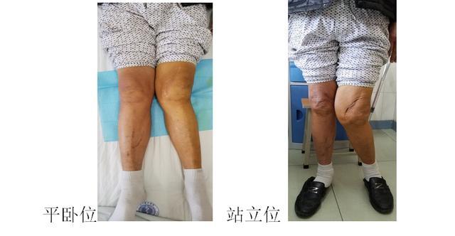 北大医疗鲁中医院骨外科为「外翻膝」老人实现重新行走梦