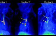 准确找到血栓,科学家开发出一种小分子示踪剂能!
