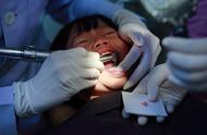 全国爱牙日:90%的中国人,为何都躲不过牙齿掉光的宿命?
