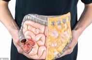内脏脂肪超标会带来六大危险疾病,做好三点来改善