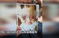 山东一继母因虐待幼童被刑拘!其供述:多次采用拳打、嘴咬等方式