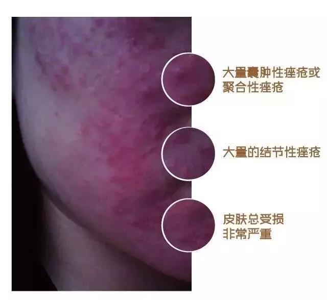 激素脸是怎么得的?有哪些症状?