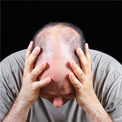 青少年脱发的原因与治疗方法