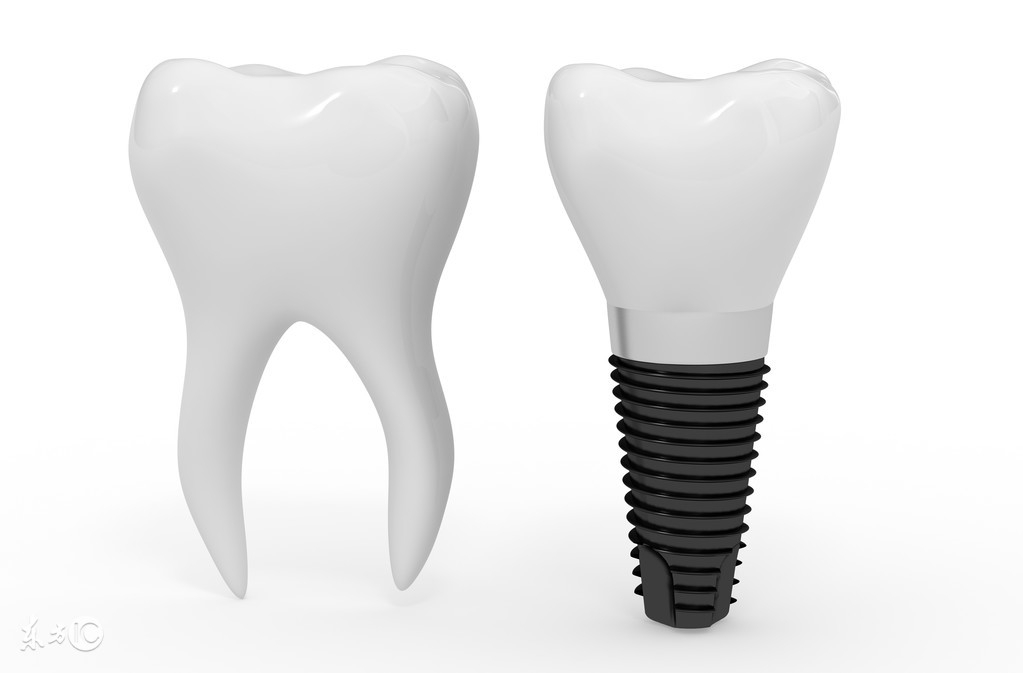 种植牙一颗要多少钱?种植牙能用一辈子吗?