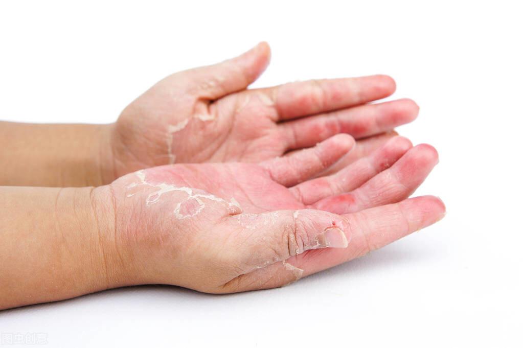 手上总是掉皮是怎么回事?注意,要警惕是这5种皮肤病在作怪