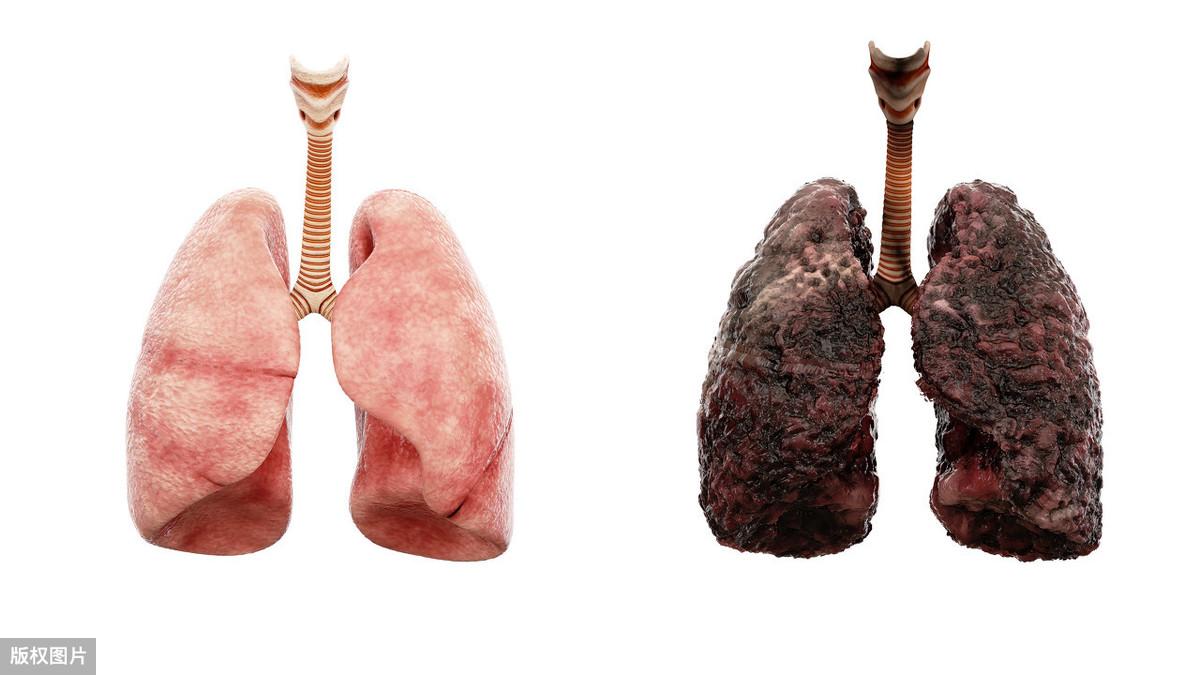 肝硬化的七大致病因素! 肝硬化致病因素 第1张