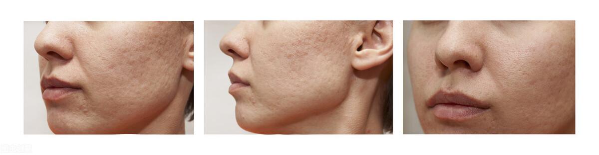 不知身体会亚健康,皮肤也会出现,出现这3种问题需警惕