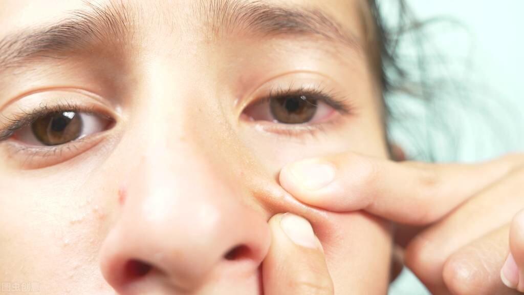 鼻子上擠出來的白色絲狀物,到底是啥?醫生講明,並教你如何清除