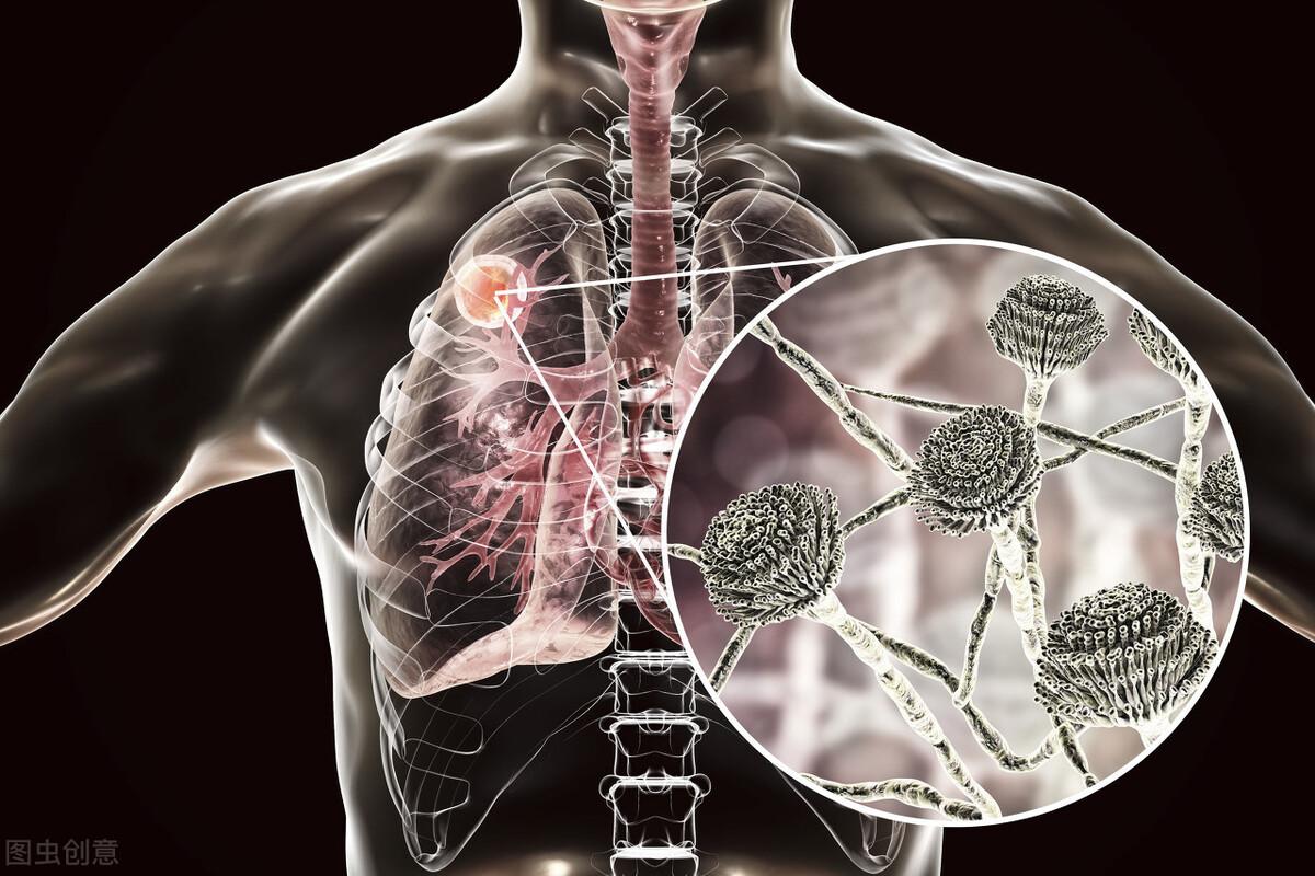 肺不好这有什么症状 出现这五种表现要趁早注意!肺不好吃什么养肺?