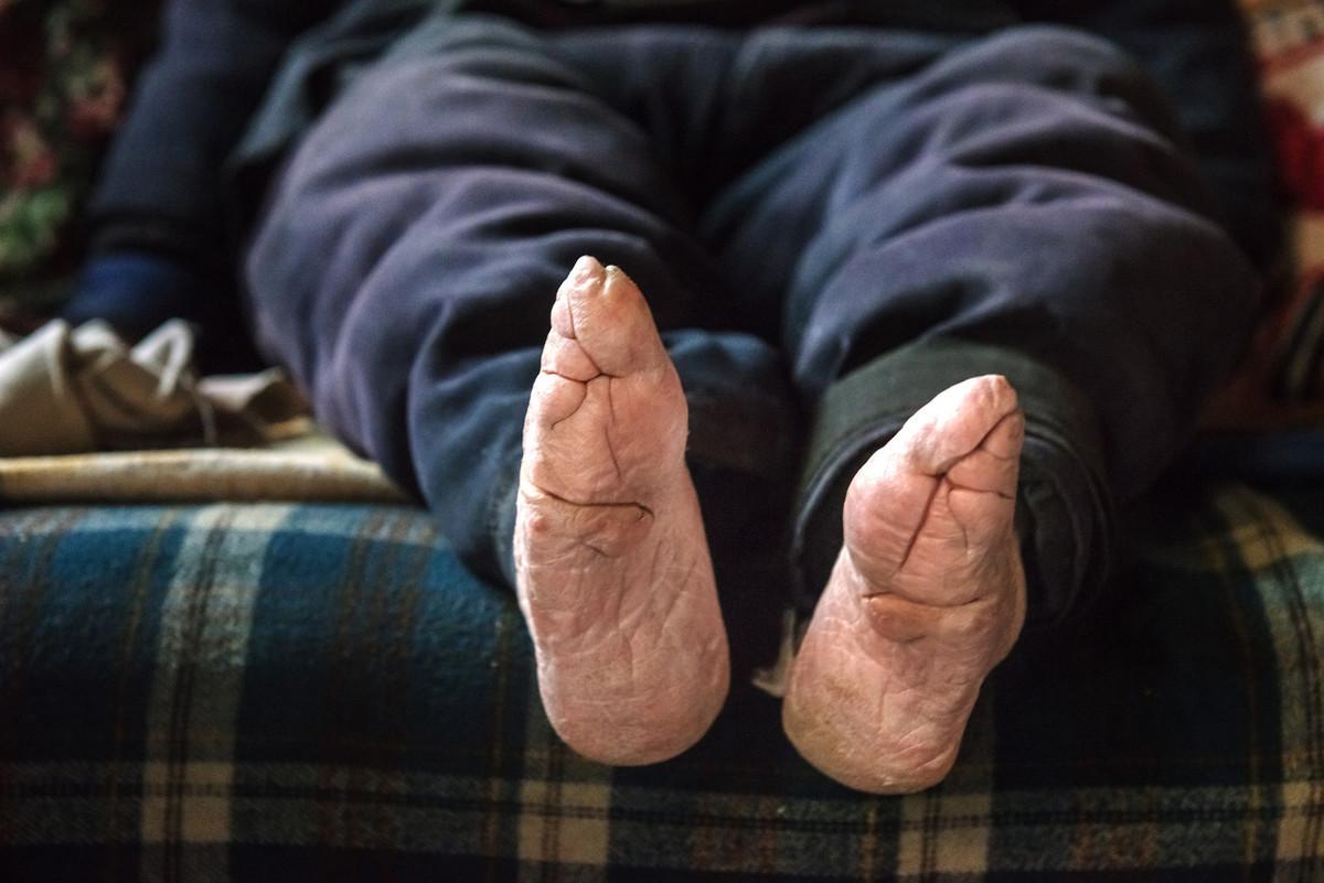 缠足陋习是宋明理学的锅?裹小脚历史已有千年,至今仍有存在