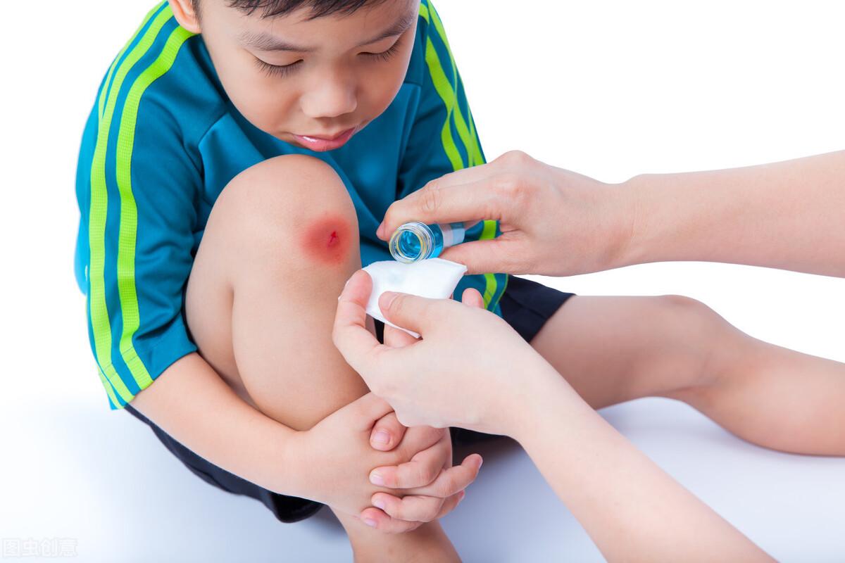 意外小伤不用去医院,家中常备这5种药,自行解决轻松处理