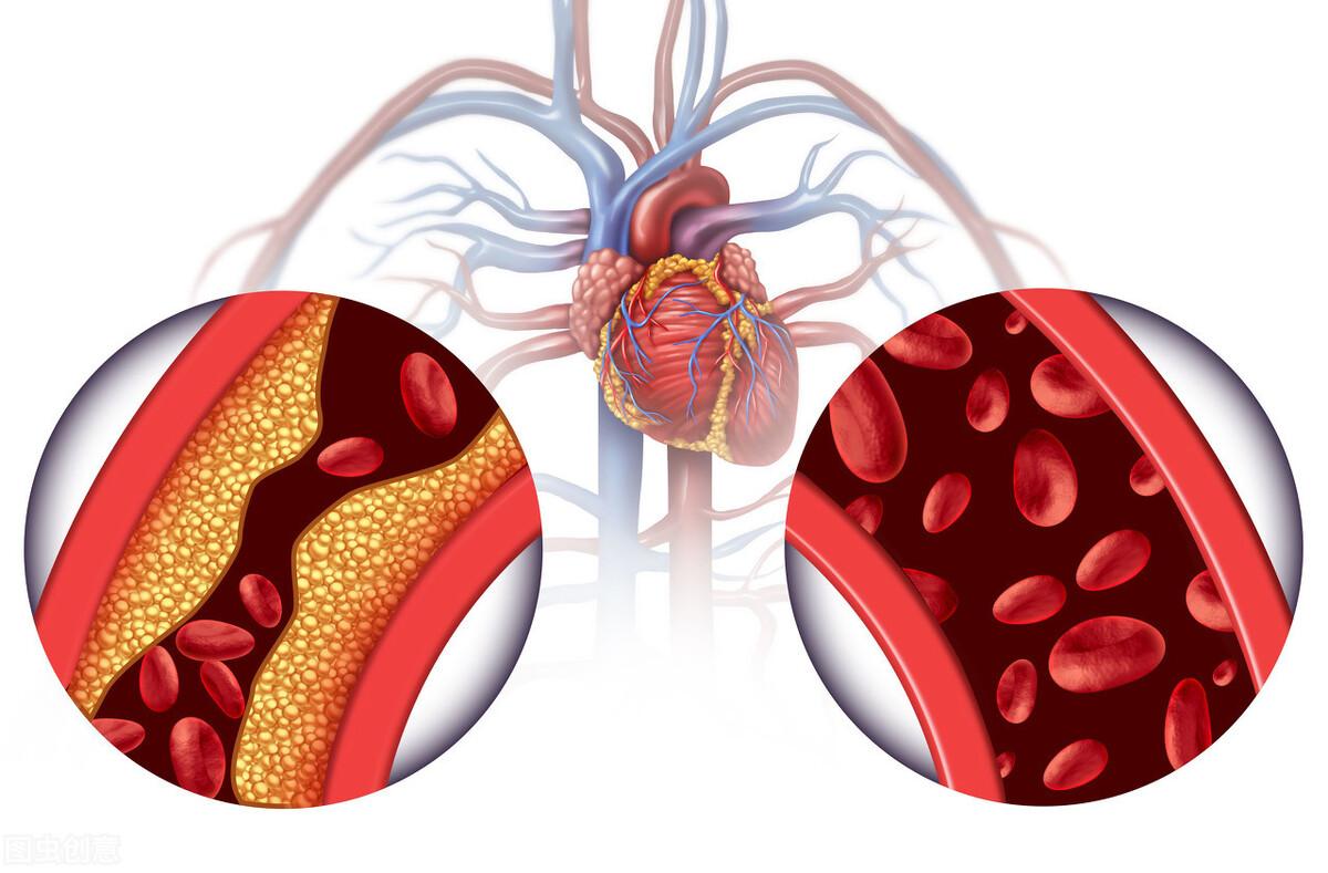 甘油三酯高、膽固醇高,是病嗎? 如何治療? 醫生說:2類食物少吃