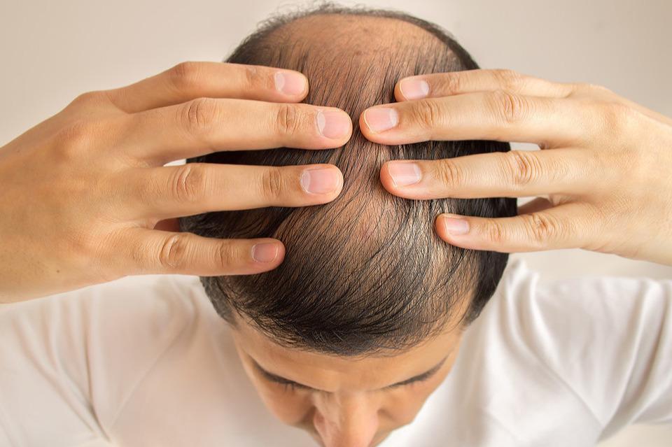 米诺地尔能治脱发吗?是不是只能治高血压!让毛发量去说明一切