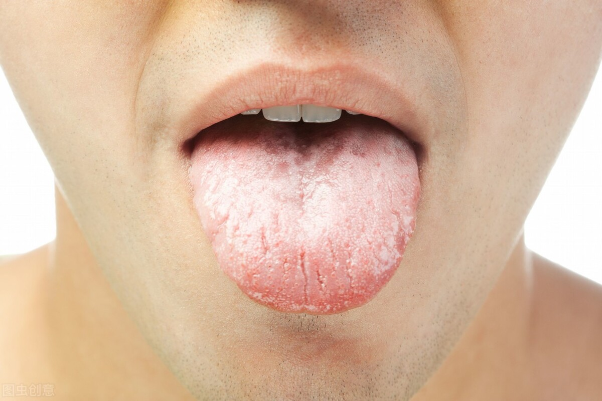 中药搭配食疗,这四种方法可以帮你去口臭