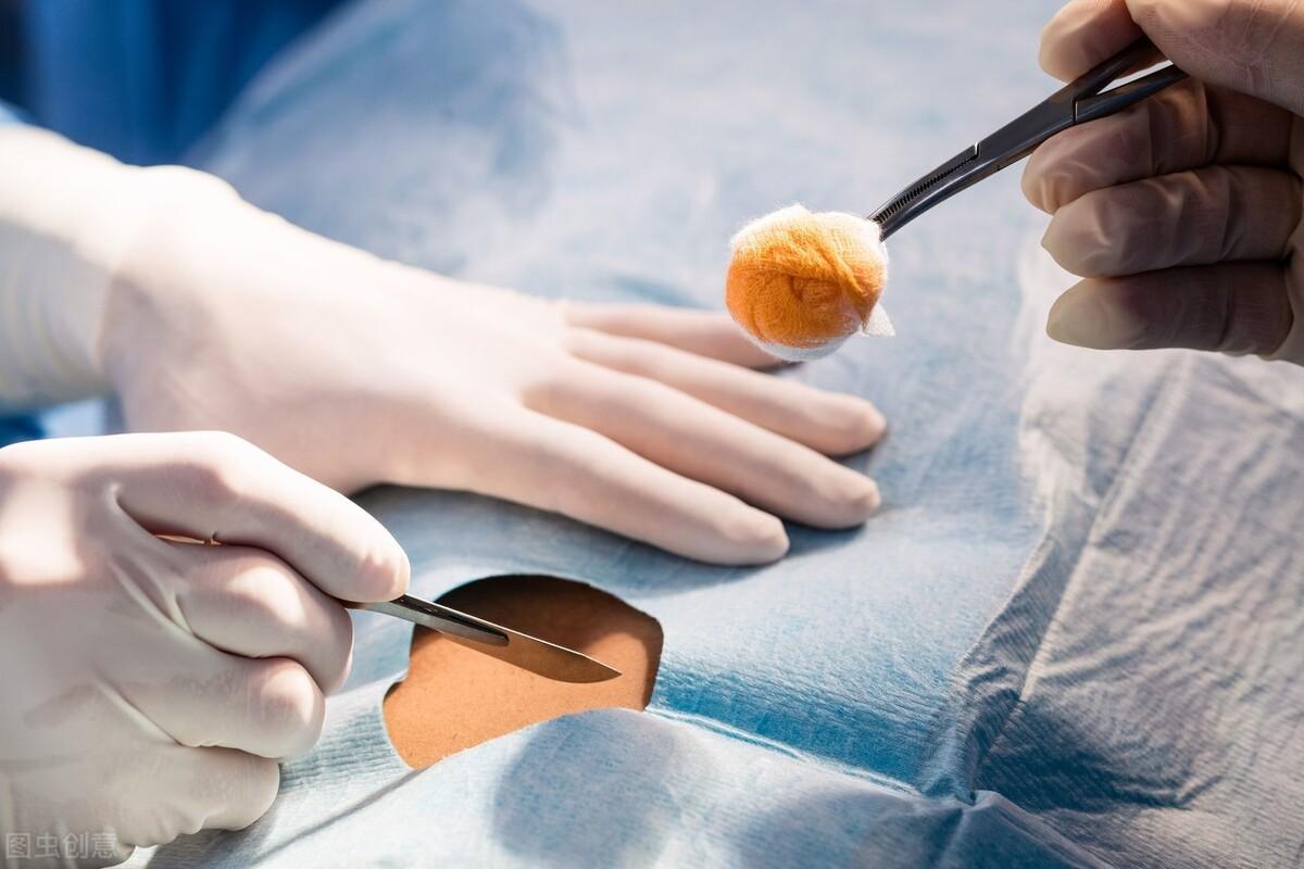 胸骨骨折有什么表现情况呢?治疗方式有哪些?医生给你正确答案