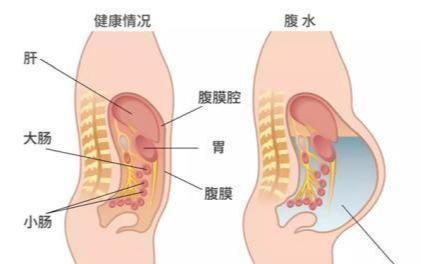 什么是腹腔积水?腹腔里为什么会有水?