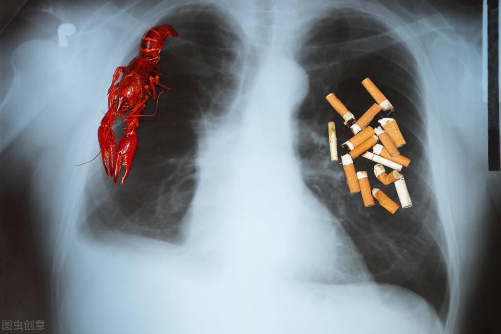 """出现这几种症状,要当心!可能是肺癌来""""报道""""了"""