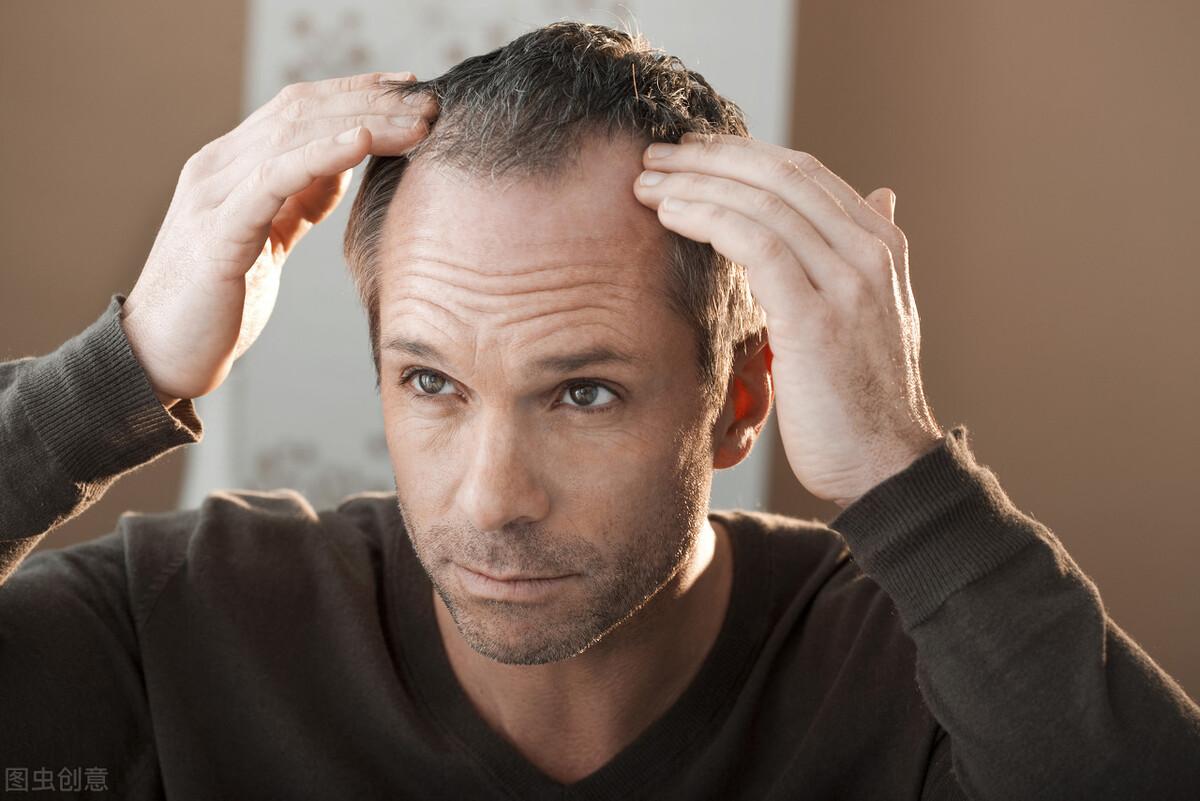 """年纪轻轻成秃头?这份防脱发""""秘笈"""",你值得拥有"""