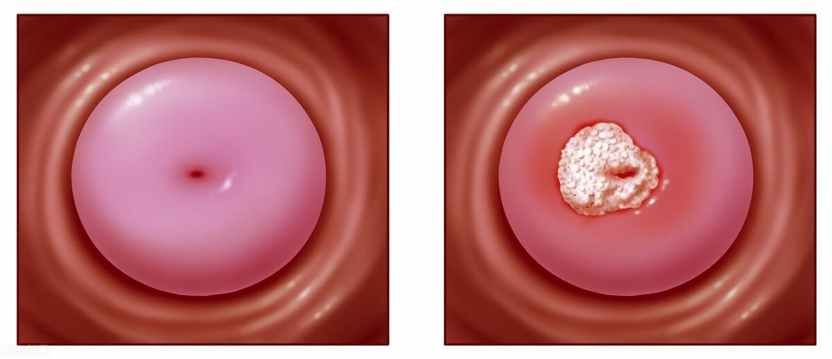 慢性宫颈炎有哪些表现?如何治疗和预防?