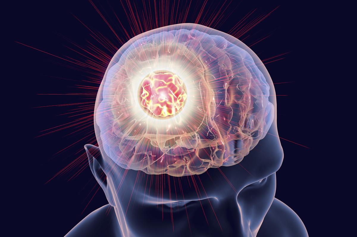 胶质瘤术后常见问题、护理及用药