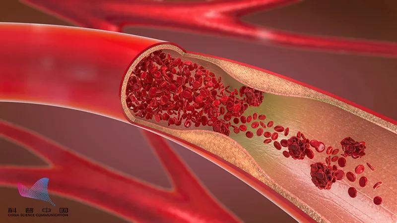 血管里有垃圾,定期输液通血管?医生:这些做法坑你没商量…