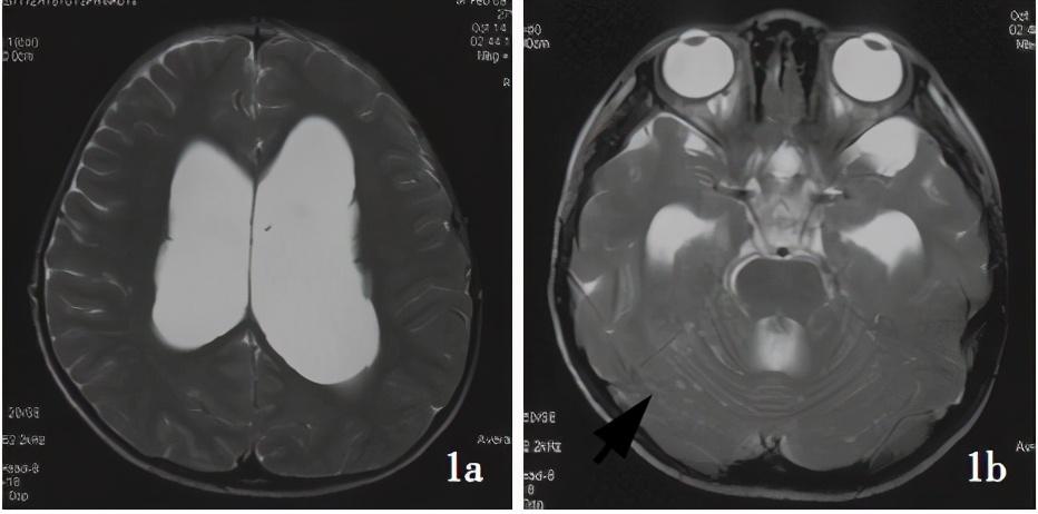 那些罕见的脑瘤|神经元-胶质肿瘤诊疗解读